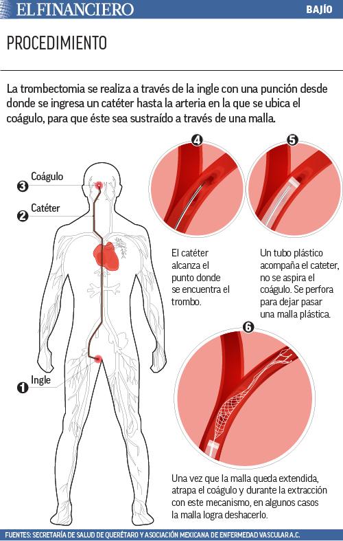 """trombectomia_web_bajio_02"""" title=""""trombectomia_web_bajio_02"""" /></div>,<p id="""